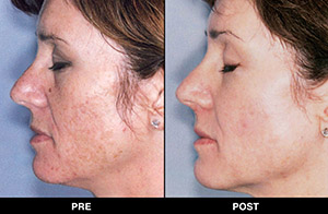 Before and after trinity treatments
