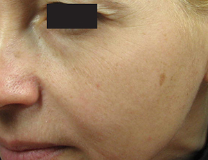 Skin after sublime aging treatment