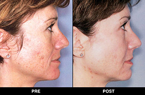 Triniti facial treatments, before and after images in profile view