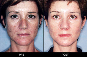 Triniti facial treatments, before and after images
