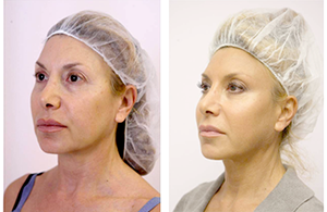 before-and-after-silhouette-soft-treatment-female-patient