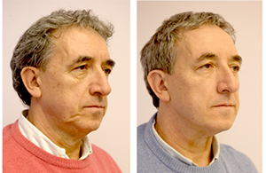 before-and-after-silhouette-soft-treatment-male-patient-2