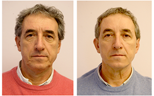 before-and-after-silhouette-soft-treatment-male-patient