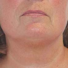 promax-lipo-after-facial-skin-tightening