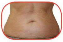 promax-lipo-after-inch-loss-treatment