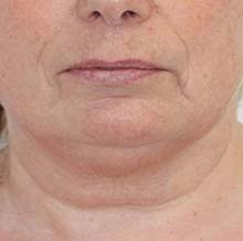 promax-lipo-before-facial-skin-tightening