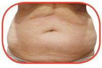 promax-lipo-before-inch-loss-treatment