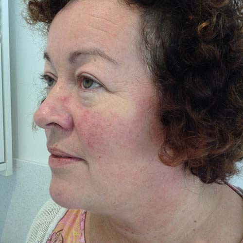 Medik8, used to treat rosacea on the face - profile view left