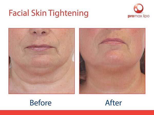 ProMax Lipo - before and after images of facial skin tightening