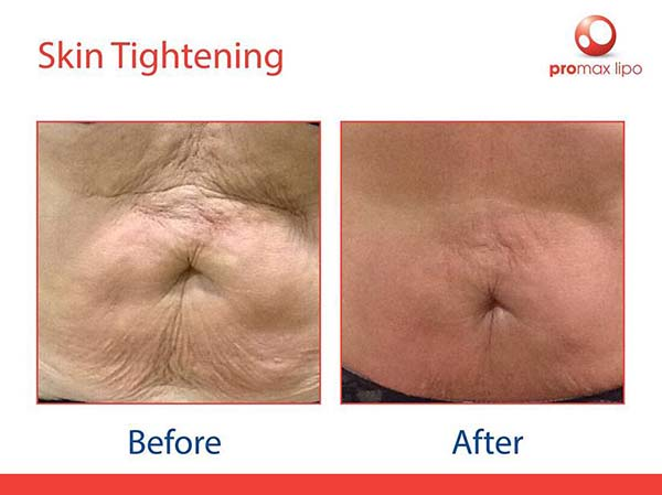 ProMax Lipo - before and after images of body skin tightening