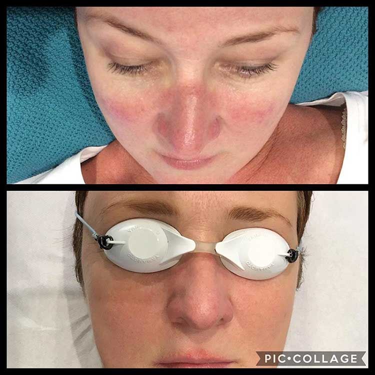 Rosacea Treatment With Great Results